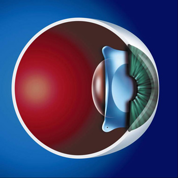ICL Lens is positioned between the pupil and the natural eye lens